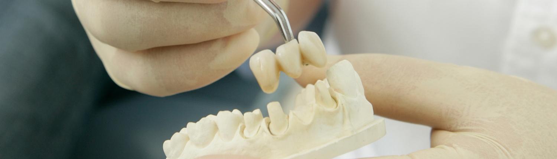 Festsitzender Zahnersatz aus dem eigenen Meisterlabor K&K Zahnärzte